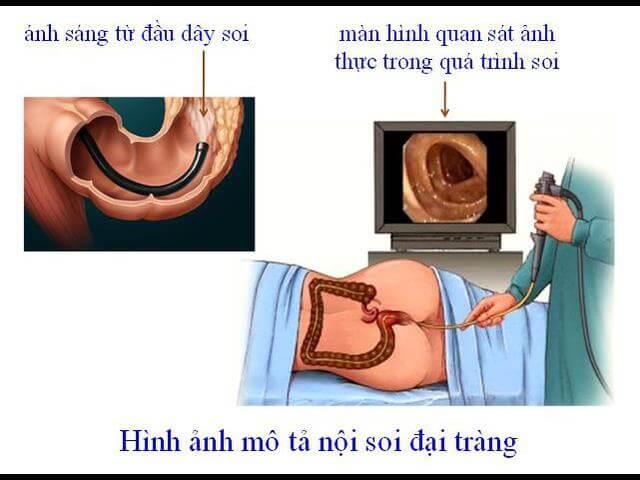 Noi Soi Dai Trang 1