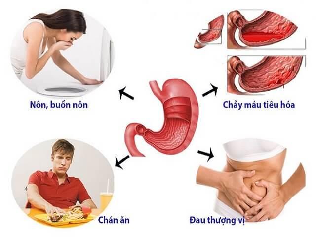 Tại sao chúng ta nên điều trị dứt điểm bệnh đau dạ dày