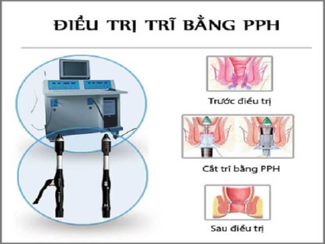 Cat Tri Bang Phuong Phap Pph 1