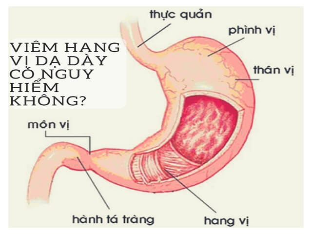 Viem Hang Vi Da Day 1