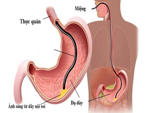 Nội soi dạ dày