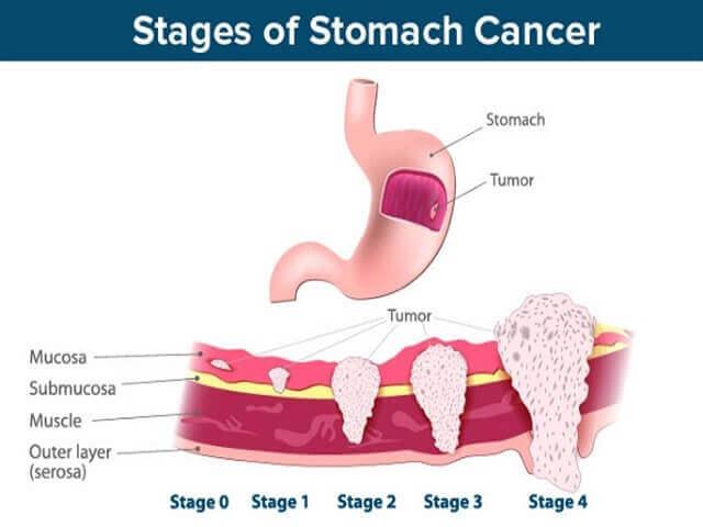 Ung thư dạ dày là gì?