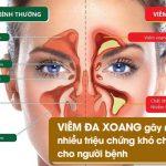 Bệnh viêm đa xoang: Sớm nhận biết dấu hiệu để điều trị kịp thời