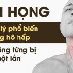 Viêm họng là gì? Nguyên nhân, triệu chứng, cách chữa [A-Z]