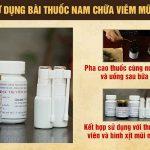 Lương y Đỗ Minh Tuấn hướng dẫn cách dùng bài thuốc chữa viêm mũi dị ứng dòng họ Đỗ Minh