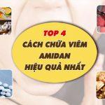 Cách chữa viêm amidan bằng phương pháp nào thực sự hiệu quả, triệt để và an toàn?