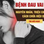Đau vai gáy: Triệu chứng, nguyên nhân và cách chữa hiệu quả chuyên gia tư vấn