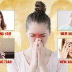 Viêm đa Xoang Mãn Tính Là Gì? Cách điều Trị Không Tái Phát Bằng Bài Thuốc Thảo Dược