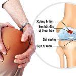 Viêm đau khớp gối là gì? Nguyên nhân, triệu chứng, chẩn đoán và điều trị