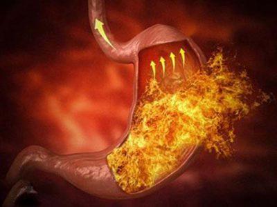 Sơ can Bình vị tán – Phương thuốc bí truyền điều trị dứt điểm trào ngược dạ dày từ gốc